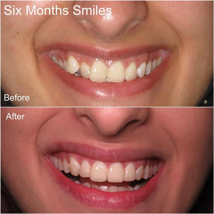 sk2dental--smile-gallery-08132018-1