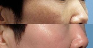 hyperpigmentation