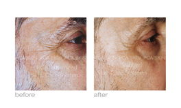 Before and after treatment for crows feet