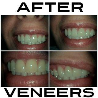 After Veneers