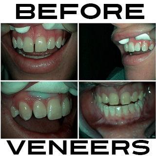 Before Veneers