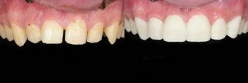 Veneers: Before and After