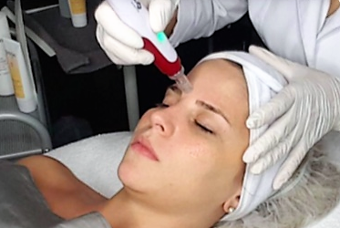 Refined Day Spa Dermapen Microneedling