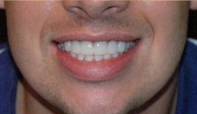 After 8 ceramic crowns