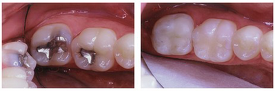 Porcelain Onlay/Composit Replacing Failing Amalgam