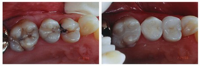 Replacement of Old/Failing Composite Restorations