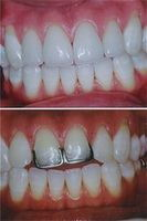 Four Porcelain Crowns and Veneers Combination