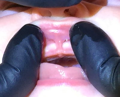 Tongue tie