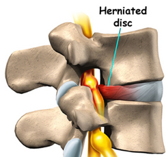 Chiro4All, a family chiropractor in Nashville, TN, relieves back pain through KDT treatments.