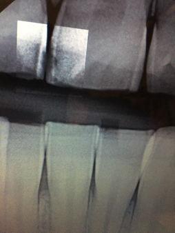 Decay Between the Teeth on Digital Dental Radiographs