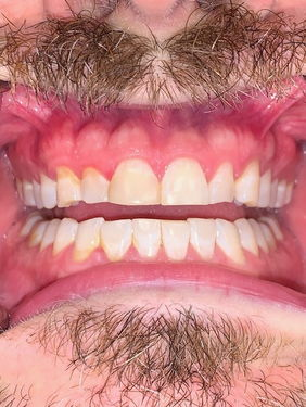 Grinding Bruxism