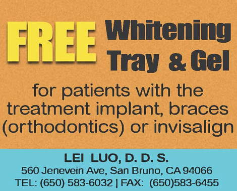 Free Whitening Tray & Gel