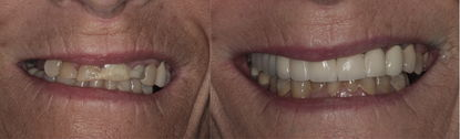 Porcelain Crowns and Bridge