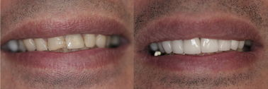 Veneers and Porcelain crowns