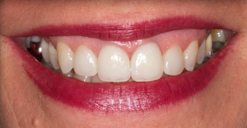 General Dentistry After