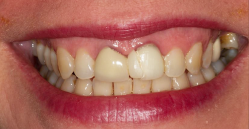General Dentistry Before