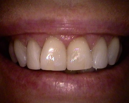 Cosmetic Restoration After