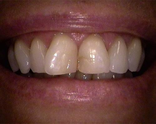 Cosmetic Restoration Before