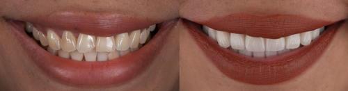 smilegallery