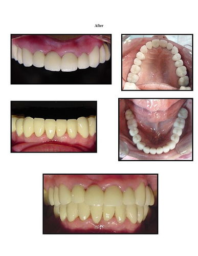 Full Mouth Reconstruction 2