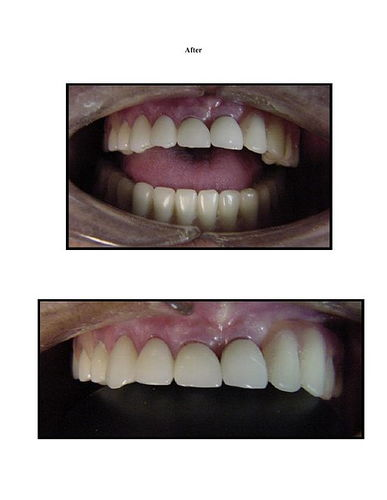 Full Mouth Reconstruction 6