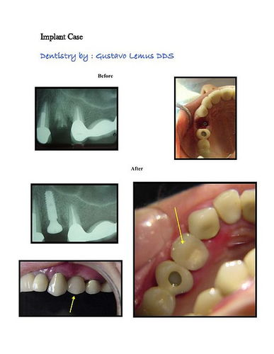 Immediate Implant Cases 1