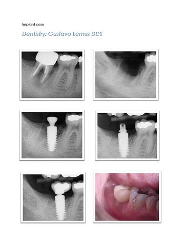 Immediate Implant Cases 2