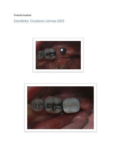 Anterior and Posterior Implant Case 2