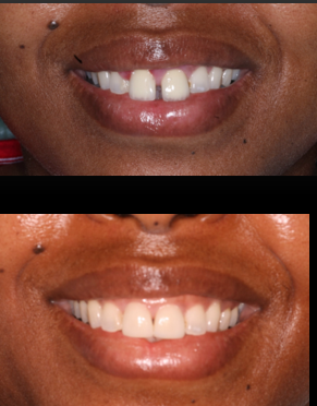 Cosmetic Dentistry I