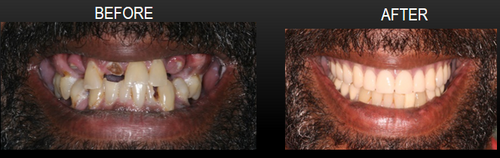 Cosmetic Dentistry II