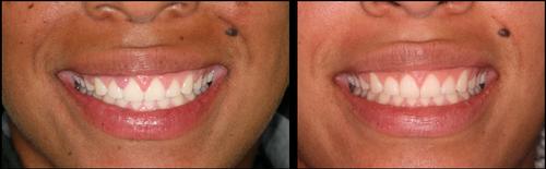Cosmetic Dentistry III