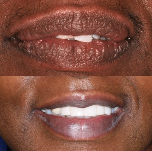 Cosmetic Dentistry IV