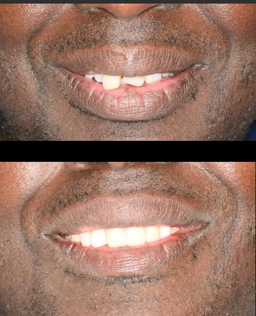 Cosmetic Dentistry V