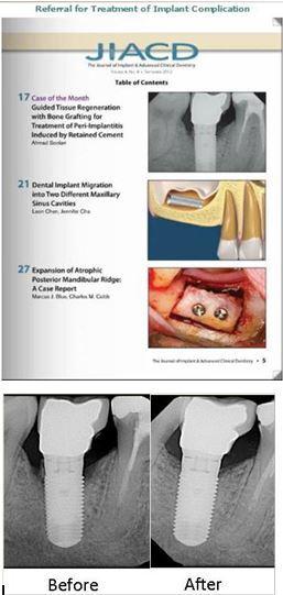Implant Complication