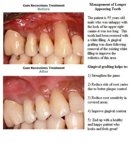 Tissue Grafting