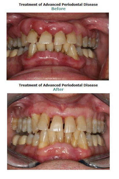 Periodontal Regeneration
