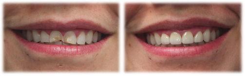 11-ma-smile-makeover