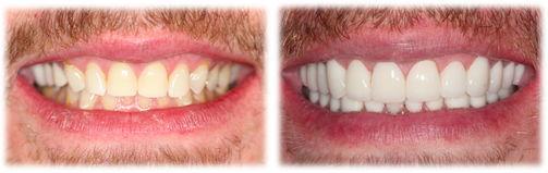 6-jw-smile-makeover