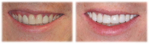 8-pw-smile-makeover