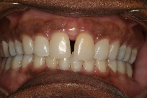 Space Closure with Invisalign - Before