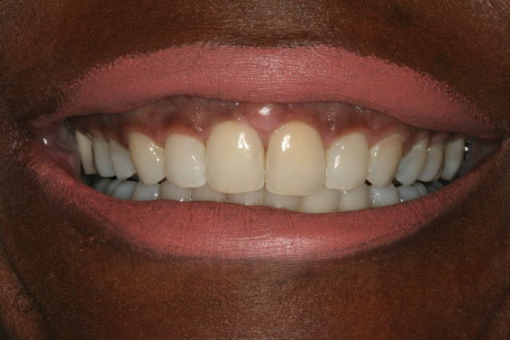 Space Closure with Invisalign - After