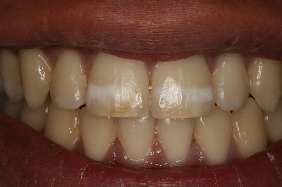 Patient missing anterior teeth