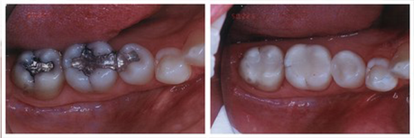 Replacement of Old/Failing Amalgam Restorations