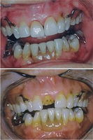 Two Porcelain Crowns (Teeth #8 and #9)