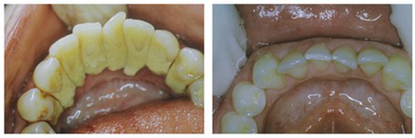 Treatment of Periodontal Disease (Gum Disease)