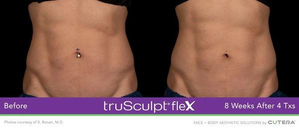 truSculptFlex