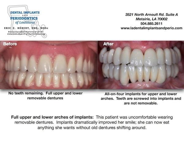 Full Arch Implants