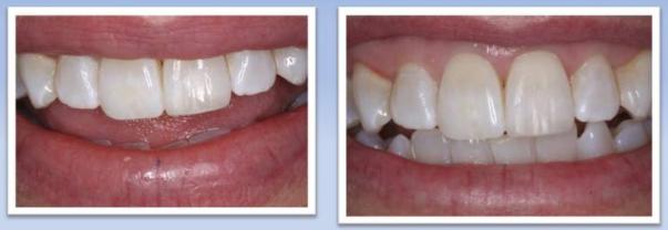Anterior Composite Tooth