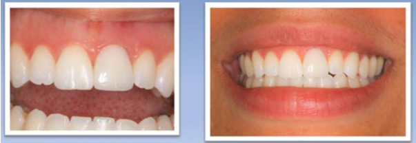 New Crown Replaced Tooth