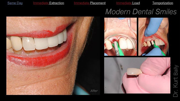 Modern Dental Smiles Dr Kurt O. Bally